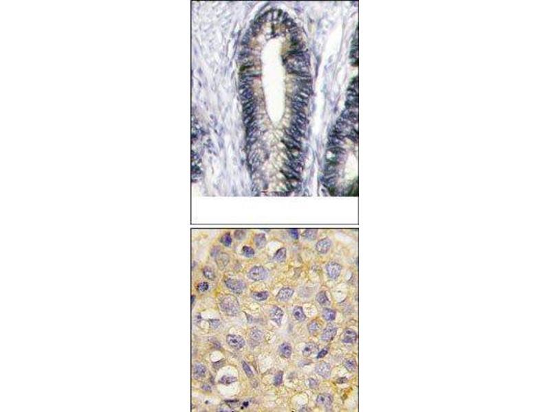 Immunohistochemistry (Paraffin-embedded Sections) (IHC (p)) image for anti-EPH Receptor B2 antibody (EPHB2) (C-Term) (ABIN359813)