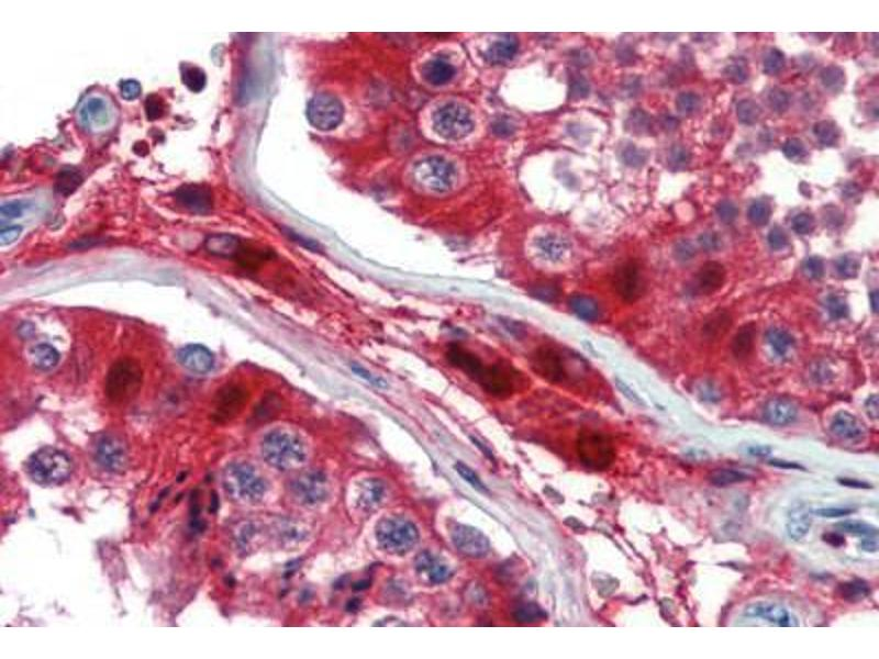 Immunohistochemistry (Paraffin-embedded Sections) (IHC (p)) image for anti-GATA Binding Protein 3 (GATA3) (AA 36-85) antibody (ABIN462169)