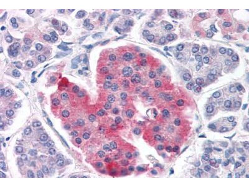 Immunohistochemistry (Paraffin-embedded Sections) (IHC (p)) image for anti-Potassium Inwardly-Rectifying Channel, Subfamily J, Member 11 (KCNJ11) (AA 18-30) antibody (ABIN461944)