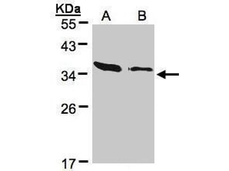 Western Blotting (WB) image for anti-ARPC2 antibody (Actin Related Protein 2/3 Complex, Subunit 2, 34kDa) (Center) (ABIN2855249)