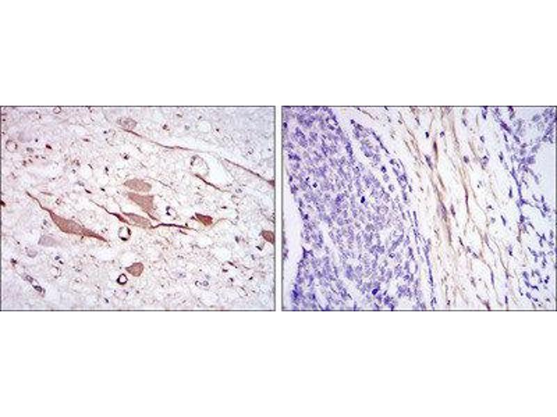 Immunohistochemistry (IHC) image for anti-Heat Shock 27kDa Protein 1 (HSPB1) antibody (ABIN1845754)