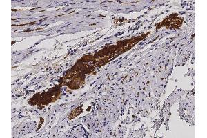 Image no. 1 for anti-L1 Cell Adhesion Molecule (L1CAM) (AA 1-1120) antibody (ABIN1995799)