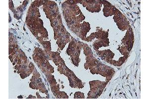 Image no. 1 for anti-Adipocyte Plasma Membrane Associated Protein (APMAP) antibody (ABIN2716266)