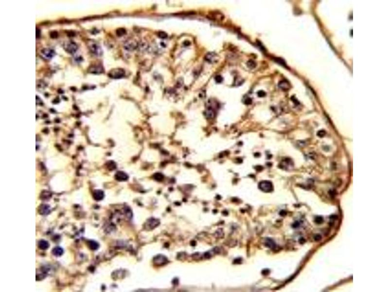 Immunohistochemistry (IHC) image for anti-Tubulin, beta 1 (TUBB1) antibody (ABIN3029340)