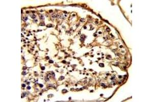 Image no. 6 for anti-Tubulin, beta 1 (TUBB1) antibody (ABIN3029340)