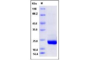 Image no. 1 for Protein Tyrosine Phosphatase, Mitochondrial 1 (PTPMT1) (AA 28-201) (Active) protein (His tag) (ABIN2005354)