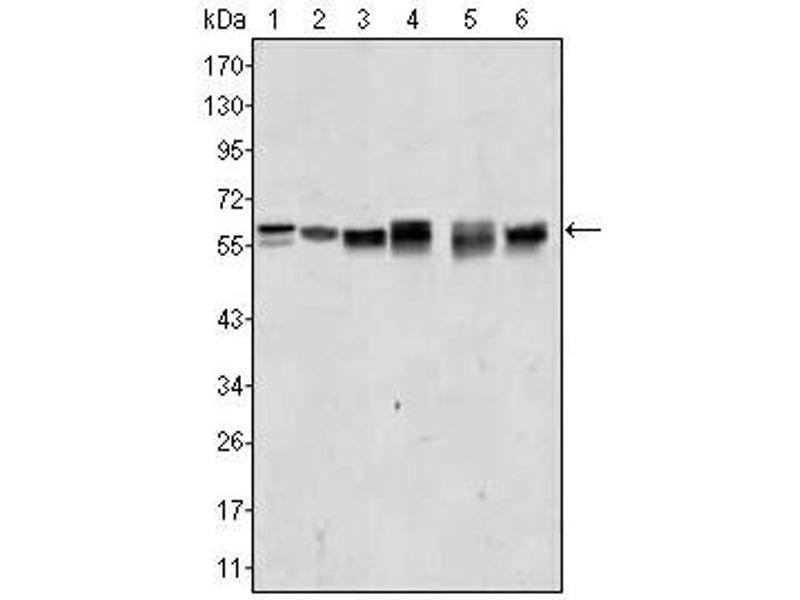 Western Blotting (WB) image for anti-V-Akt Murine Thymoma Viral Oncogene Homolog 2 (AKT2) antibody (ABIN1105276)