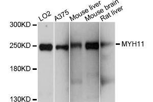 Image no. 1 for anti-Myosin Heavy Chain 11, Smooth Muscle (MYH11) antibody (ABIN5964962)