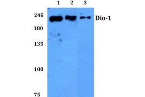 Western Blotting (WB) image for anti-Death Inducer-Obliterator 1 (DIDO1) antibody (ABIN439156)