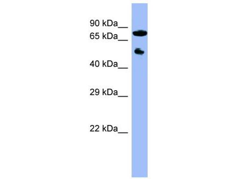 Western Blotting (WB) image for anti-Cytochrome P450, Family 11, Subfamily B, Polypeptide 2 (CYP11B2) (Middle Region) antibody (ABIN2776971)
