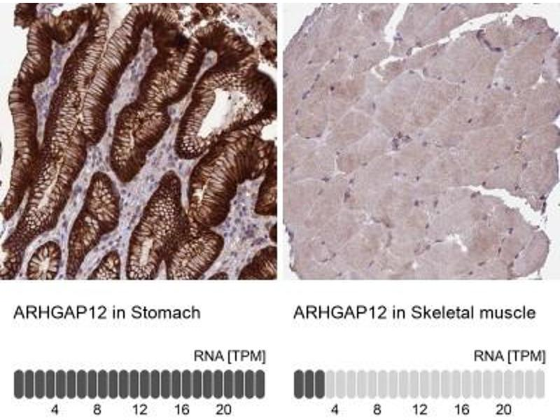 Immunohistochemistry (Paraffin-embedded Sections) (IHC (p)) image for anti-rho GTPase Activating Protein 12 (ARHGAP12) antibody (ABIN4281494)