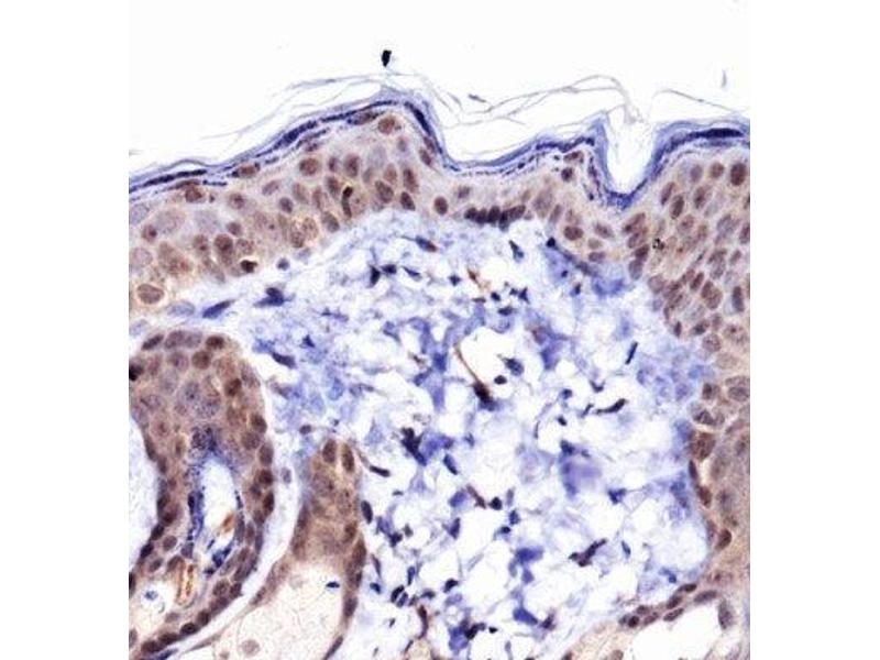 Immunohistochemistry (IHC) image for anti-Collagen, Type I, alpha 1 (COL1A1) (AA 1300-1350), (C-Term) antibody (ABIN4299591)