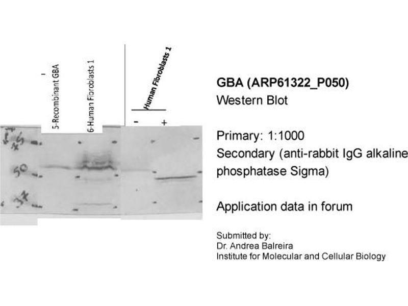 Western Blotting (WB) image for anti-Glucosidase, Beta, Acid (GBA) (C-Term) antibody (ABIN2788767)