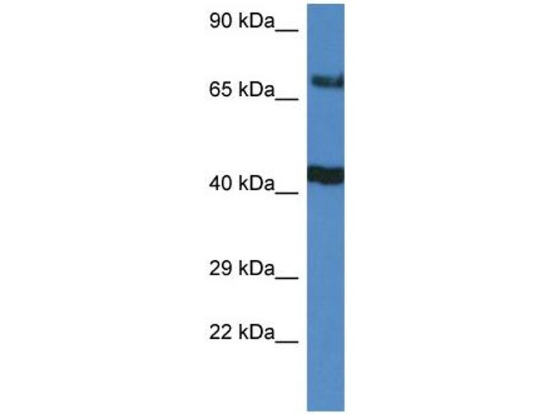 Western Blotting (WB) image for anti-TNFAIP3 Interacting Protein 1 (TNIP1) (C-Term) antibody (ABIN2774321)