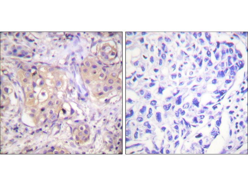 Immunohistochemistry (IHC) image for anti-PKC gamma antibody (Protein Kinase C, gamma) (pThr497) (ABIN2499422)