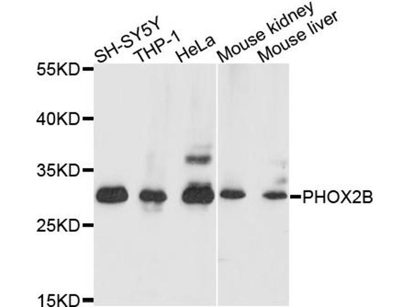 Image no. 1 for anti-Paired-Like Homeobox 2b (PHOX2B) antibody (ABIN6572005)