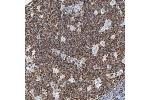 Immunohistochemistry (Paraffin-embedded Sections) (IHC (p)) image for anti-Baculoviral IAP Repeat Containing 3 (BIRC3) antibody (ABIN4298725)