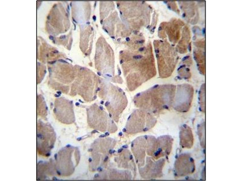 Immunohistochemistry (Paraffin-embedded Sections) (IHC (p)) image for anti-Ribosomal Protein S6 Kinase, 52kDa, Polypeptide 1 (RPS6KC1) (AA 19-47), (N-Term) antibody (ABIN954626)