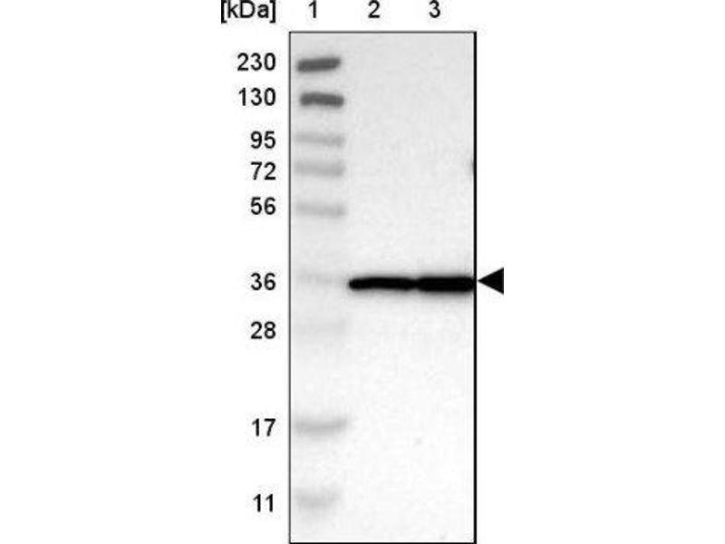Western Blotting (WB) image for anti-Malate Dehydrogenase 2, NAD (Mitochondrial) (MDH2) antibody (ABIN4333314)