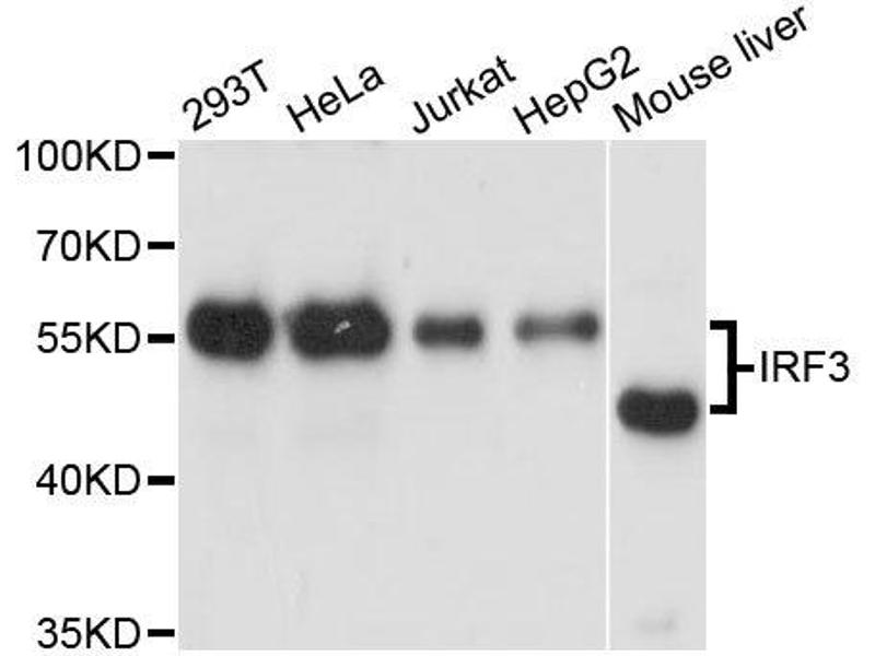 Western Blotting (WB) image for anti-Interferon Regulatory Factor 3 (IRF3) antibody (ABIN5663780)