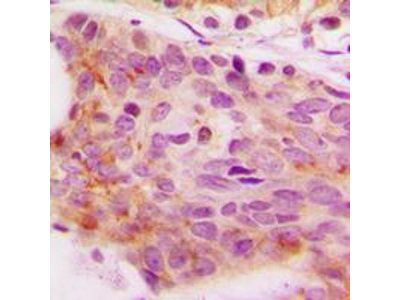 Immunohistochemistry (IHC) image for anti-Nuclear Factor of Activated T-Cells, Cytoplasmic, Calcineurin-Dependent 3 (NFATC3) (N-Term), (pSer165) antibody (ABIN2707653)
