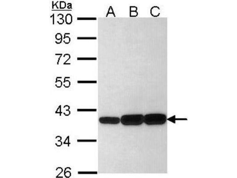 3-alpha hydroxysteroid dehydrogenase type ii