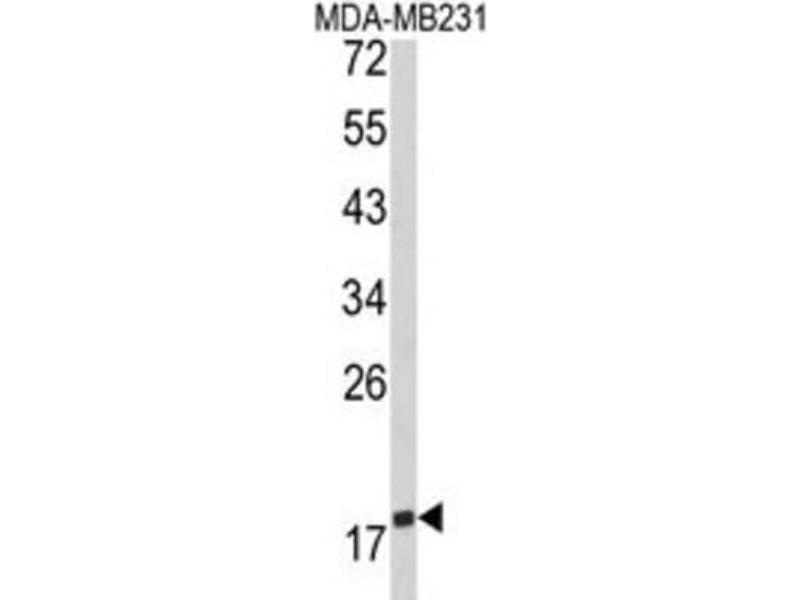Western Blotting (WB) image for anti-CD28 (CD28) antibody (ABIN3002911)