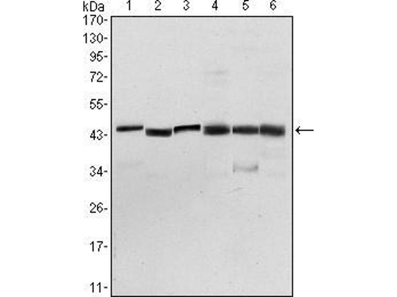Western Blotting (WB) image for anti-PDPK1 antibody (3-phosphoinositide Dependent Protein Kinase-1) (ABIN969347)