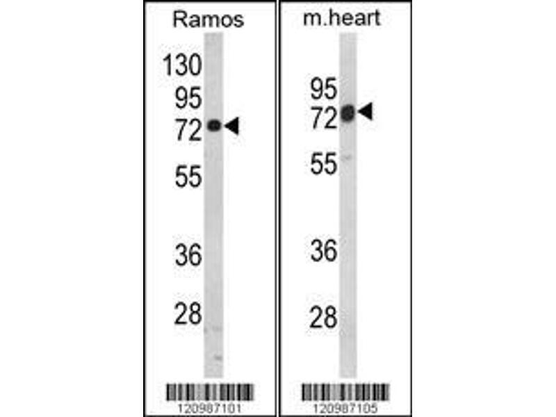 Western Blotting (WB) image for anti-Hydroxyacyl-Coenzyme A Dehydrogenase/3-Ketoacyl-Coenzyme A Thiolase/enoyl-Coenzyme A Hydratase (Trifunctional Protein), alpha Subunit (HADHA) (AA 737-763), (C-Term) antibody (ABIN390869)