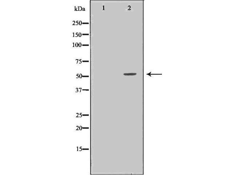 Western Blotting (WB) image for anti-Serpin Peptidase Inhibitor, Clade G (C1 Inhibitor), Member 1 (SERPING1) antibody (ABIN6265014)