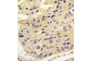 Image no. 2 for anti-Frequently Rearranged in Advanced T-Cell Lymphomas (FRAT1) (Center) antibody (ABIN356925)