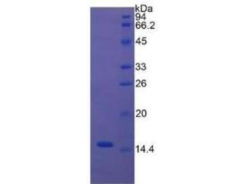 SDS-PAGE (SDS) image for Caspase 3, Apoptosis-Related Cysteine Peptidase (CASP3) ELISA Kit (ABIN6574178)