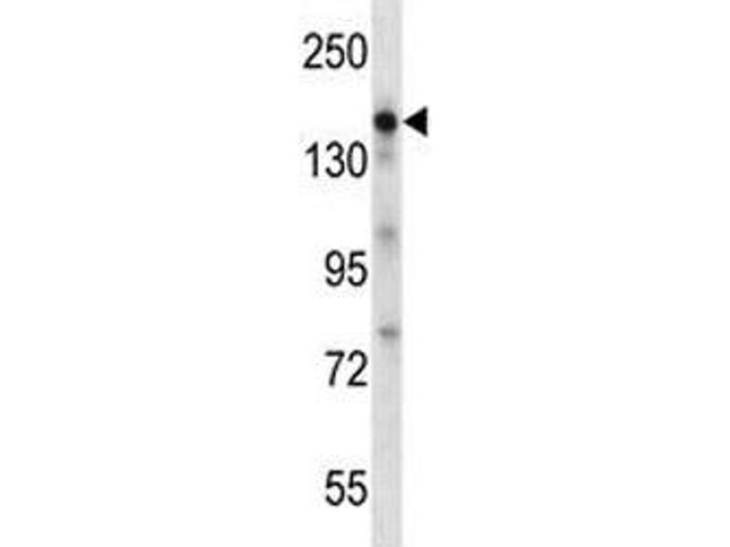 Western Blotting (WB) image for anti-Epidermal Growth Factor (EGF) (AA 690-720) antibody (ABIN3030832)