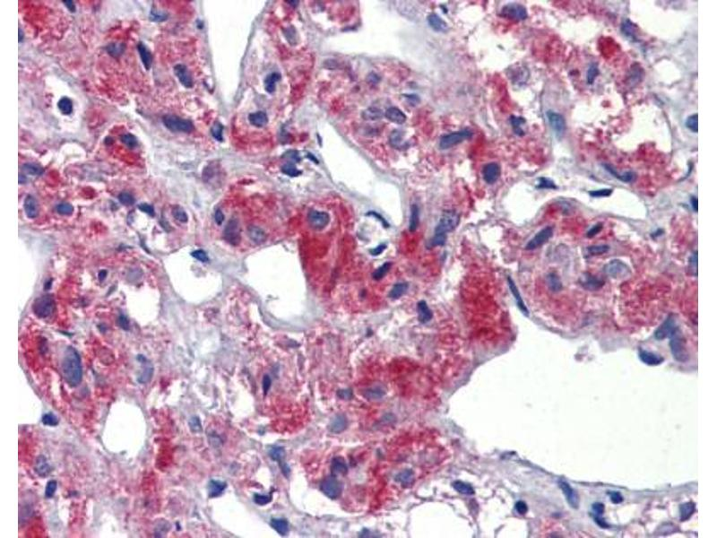 Immunohistochemistry (IHC) image for anti-T-Cell Acute Lymphocytic Leukemia 1 (TAL1) (C-Term) antibody (ABIN2792541)