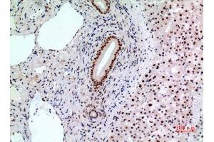 Image no. 2 for anti-B-Cell CLL/lymphoma 6 (BCL6) (Internal Region) antibody (ABIN3187827)