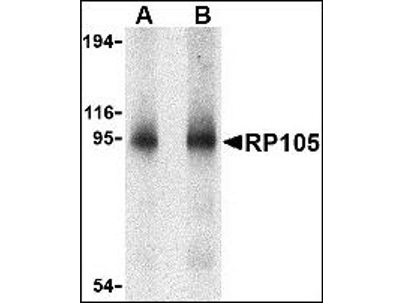 image for anti-CD180 Molecule (CD180) antibody (ABIN372902)