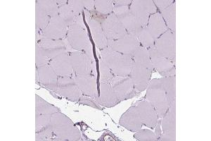 Immunohistochemistry (Paraffin-embedded Sections) (IHC (p)) image for anti-Chloride Intracellular Channel 4 (CLIC4) antibody (ABIN4299203)