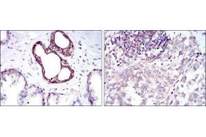 Immunohistochemistry (Paraffin-embedded Sections) (IHC (p)) image for anti-Nuclear Factor of kappa Light Polypeptide Gene Enhancer in B-Cells 1 (NFKB1) antibody (ABIN4339352)