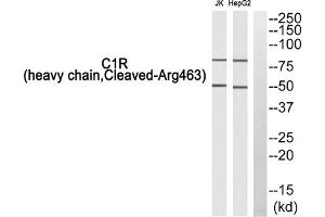 Image no. 1 for anti-Complement Component 1, R Subcomponent (C1R) (Cleaved-Arg463), (Heavy Chain) antibody (ABIN1853546)