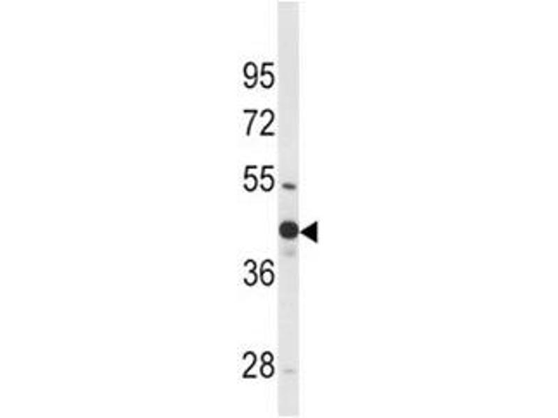 Western Blotting (WB) image for anti-Wingless-Type MMTV Integration Site Family, Member 4 (WNT4) (AA 211-239) antibody (ABIN3029633)