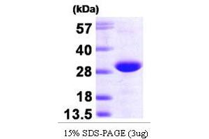 Image no. 1 for Related RAS Viral (R-Ras) Oncogene Homolog 2 (RRAS2) (AA 1-201) protein (His tag) (ABIN666896)
