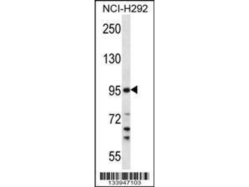 Western Blotting (WB) image for anti-Transmembrane Protease, Serine 7 (TMPRSS7) (AA 103-132), (N-Term) antibody (ABIN657793)