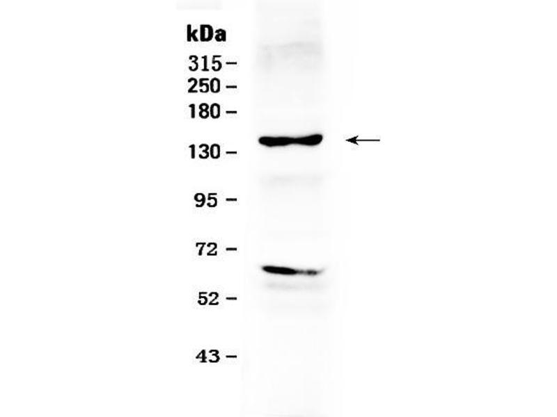 Western Blotting (WB) image for anti-V-Erb-B2 erythroblastic Leukemia Viral Oncogene Homolog 2, Neuro/glioblastoma Derived Oncogene Homolog (Avian) (ERBB2) (AA 29-64), (N-Term) antibody (ABIN5518830)