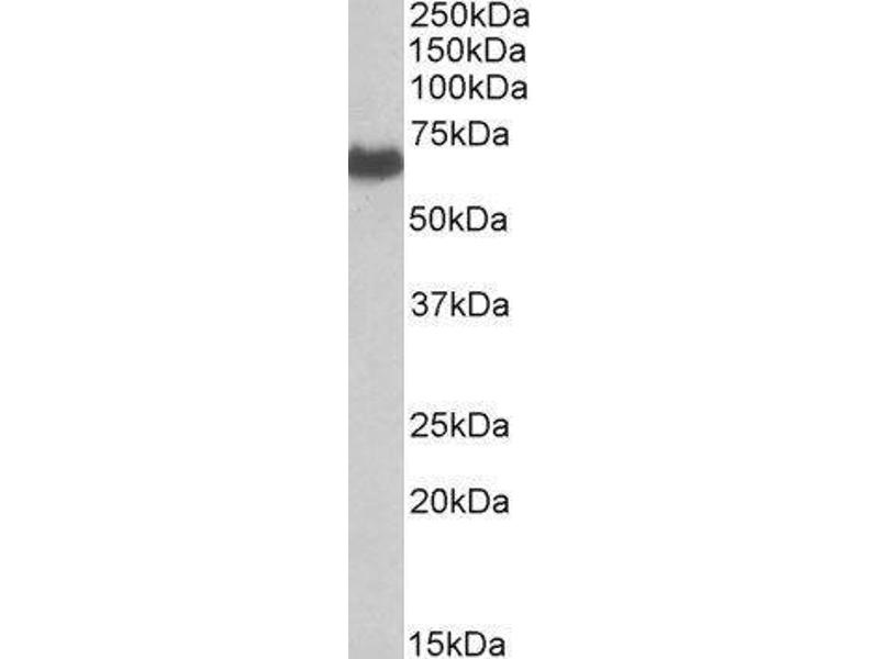 Western Blotting (WB) image for EH-Domain Containing 2 (EHD2) peptide (ABIN369793)