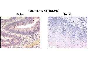 Immunohistochemistry (IHC) image for anti-Tumor Necrosis Factor Receptor Superfamily, Member 10c, Decoy Without An Intracellular Domain (TNFRSF10C) antibody (ABIN1169229)