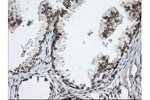 Image no. 3 for anti-Transforming, Acidic Coiled-Coil Containing Protein 3 (TACC3) antibody (ABIN2733183)