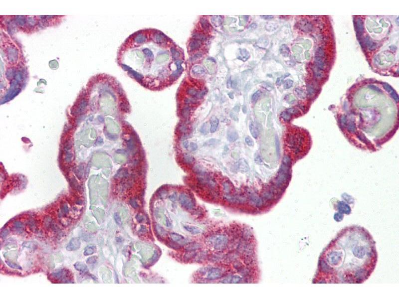 Immunohistochemistry (IHC) image for anti-Keratin 23 (KRT23) (Middle Region) antibody (ABIN405920)
