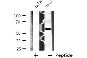 Image no. 1 for anti-Carboxypeptidase N Subunit 2 (CPN2) antibody (ABIN6257074)