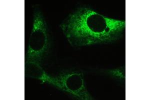 Image no. 5 for anti-Myosin Phosphatase, Target Subunit 1 (PPP1R12A) (AA 1-40), (N-Term) antibody (ABIN3043902)