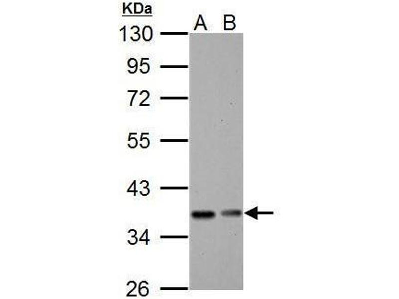 Western Blotting (WB) image for anti-NFKBIA antibody (Nuclear Factor of kappa Light Polypeptide Gene Enhancer in B-Cells Inhibitor, alpha) (ABIN2448340)
